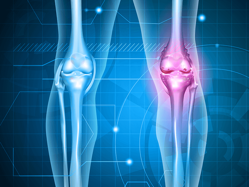 Tips For Getting Around The House After Total Knee Replacement